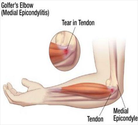 tratamentul forum al artrozei genunchiului