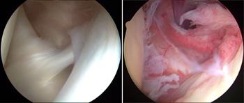 Imagine artroscopică în umăr înghețat