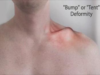 Tratamentul herniei coloanei vertebrale lombare cu un laser fara interven?ie chirurgicala