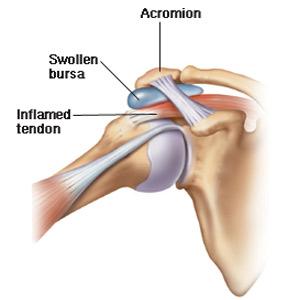 Durere de țesut moale în articulația umărului - Tratați articulațiile din kustanai