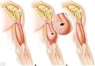 Cauzele tendinitei mușchiului biceps - Doza de Sănătate