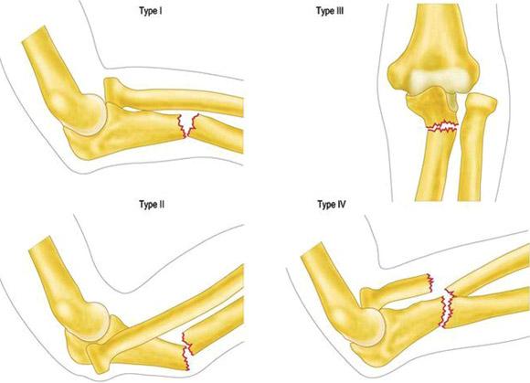 tratamentul fracturilor de cot