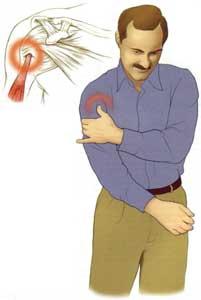 Lovitura la genunchi poate duce la artroză. Semnele că trebuie să mergeți la medic