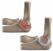 tratamentul articulațiilor cu caripazim