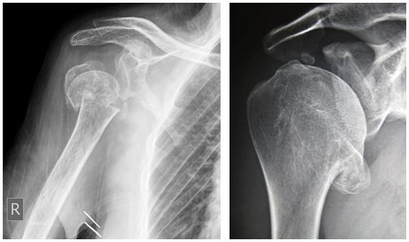 semne radiologice ale artrozei articulației umărului)