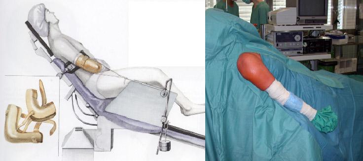 hematoame după o intervenție chirurgicală suplimentară)