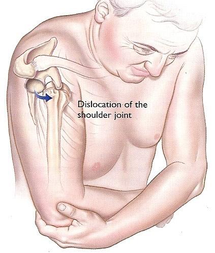 tratamentul luxației articulației umărului