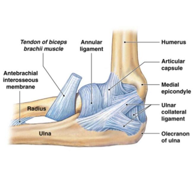 Epicondilita laterala sau Tennis elbow